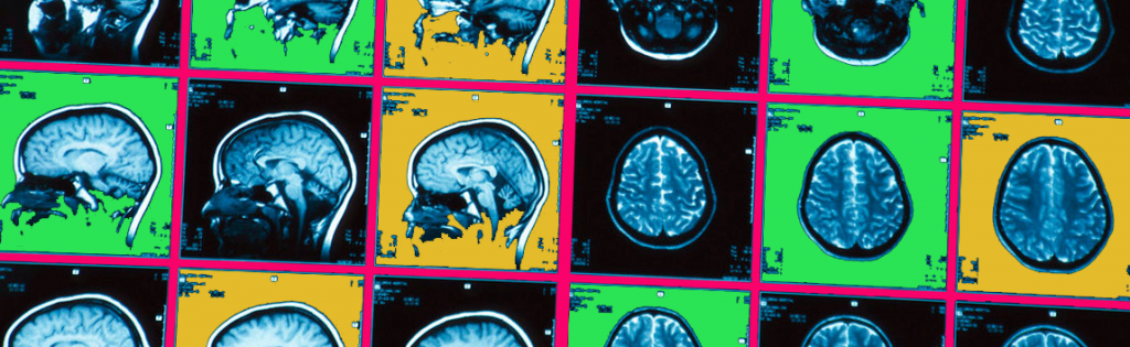 brain scan 2 colored